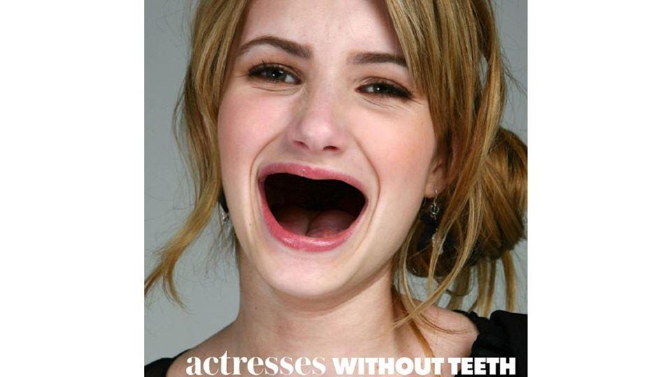 emma roberts sem dentes
