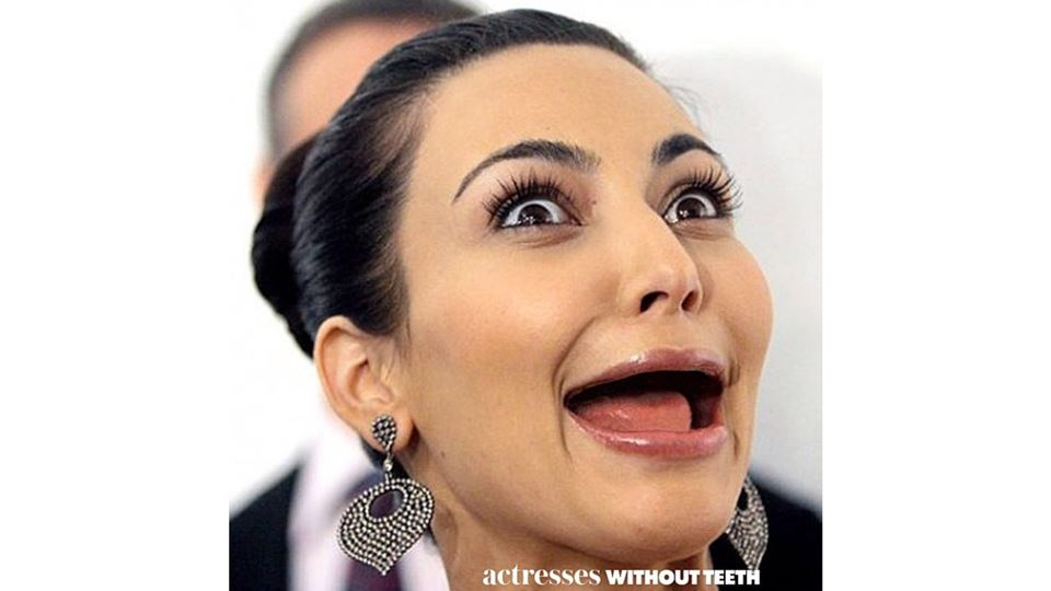 kim kardashian sem dentes